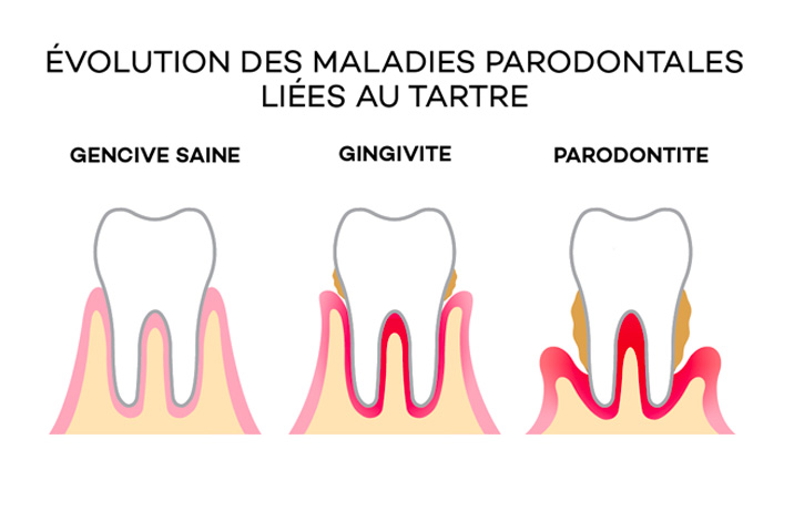 Evolution maladie parodontal