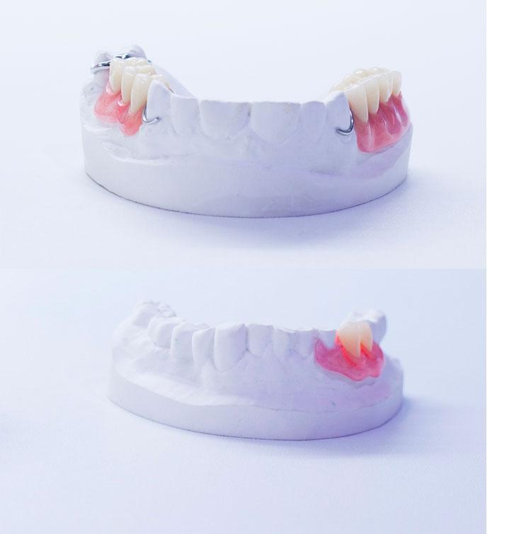 implant amovible partiel