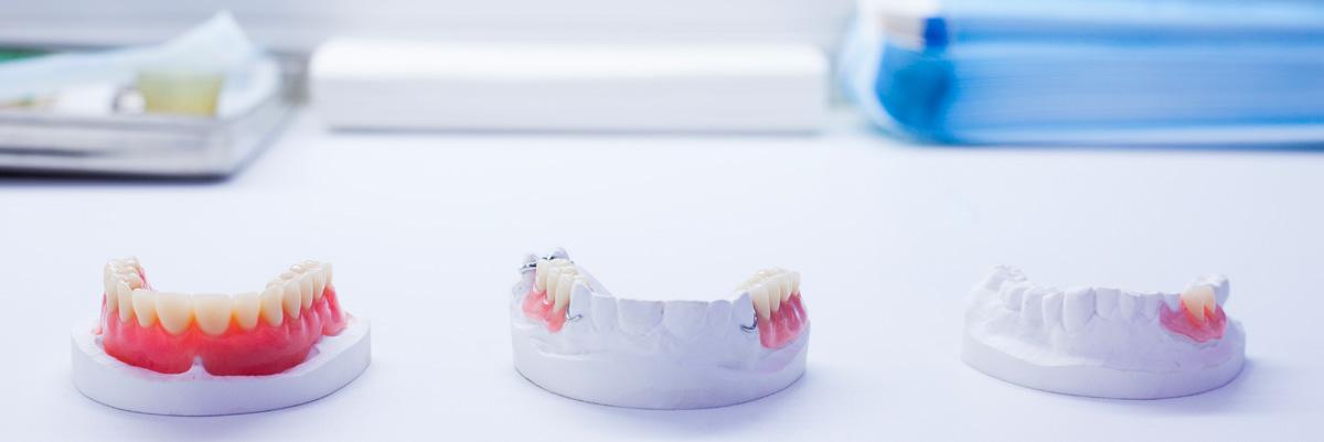 prothèses dentaires amovibles
