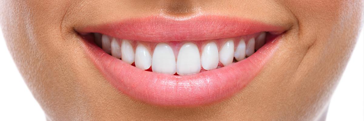 prothèses et implants dentaires