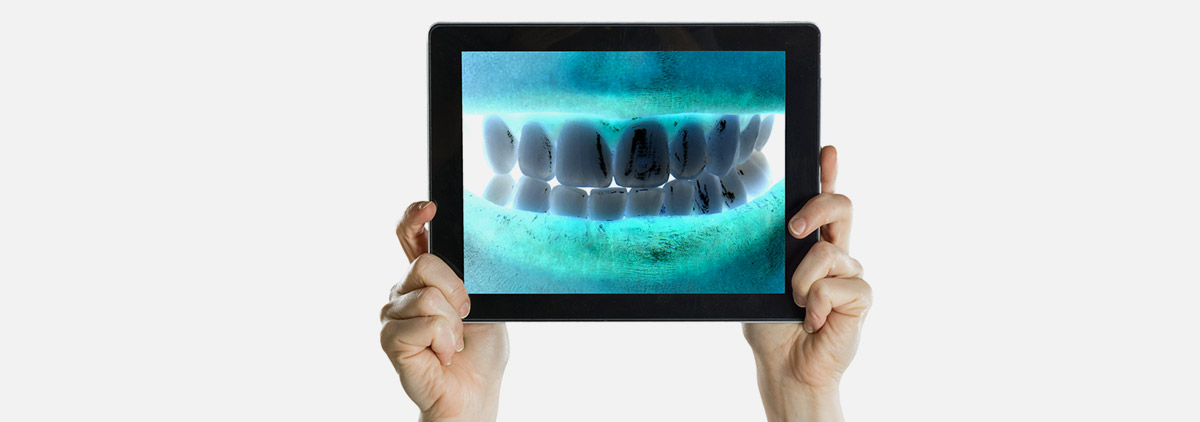 radiologie des dents