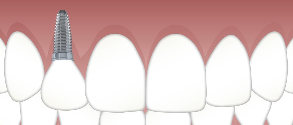 Dent sur pivot & inlay-core guide & conseils soins dentaire dentegp