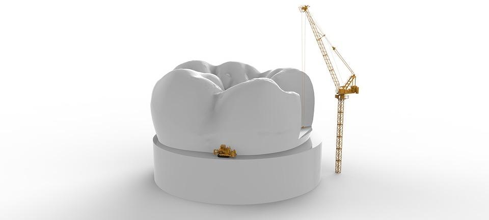 couronne dentaire perdue dentego