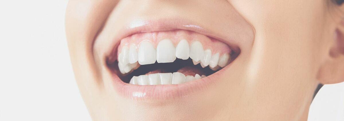 Dent cassée Dentego